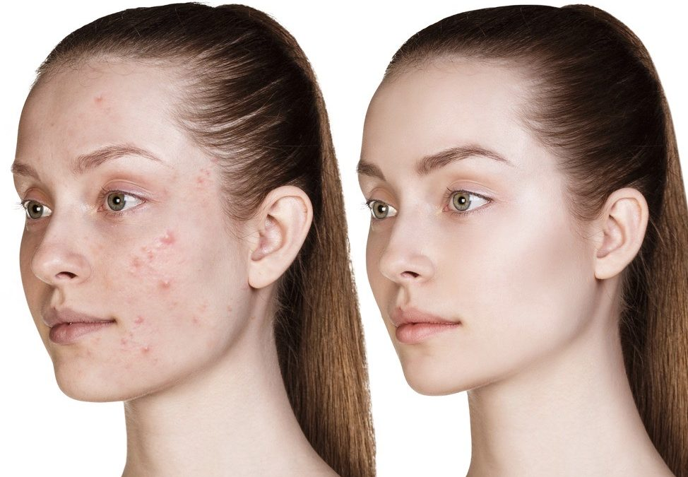 Is my acne related to my diet?
